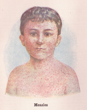 Measles illustration from The Practical Guide to Health by Frederick M. Rossiter, 1908, public domain via Wikimedia Commons